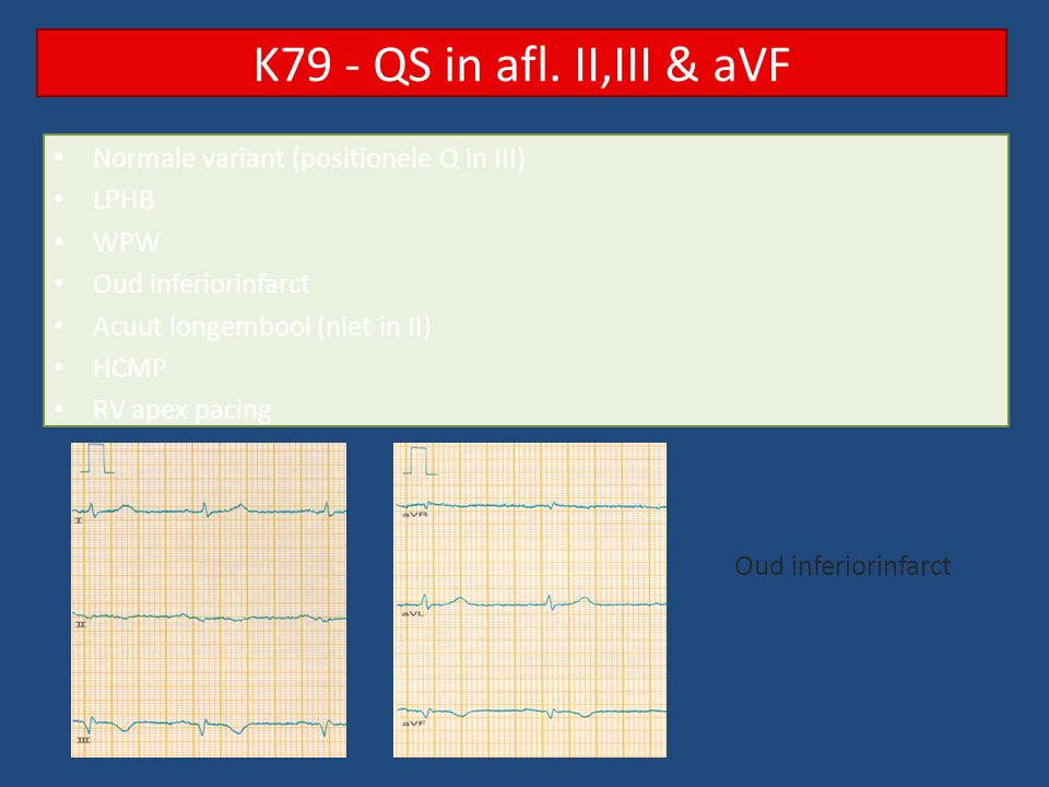 K79 - QS in afl. II,III & aVF Normale variant (positionele Q in III)
