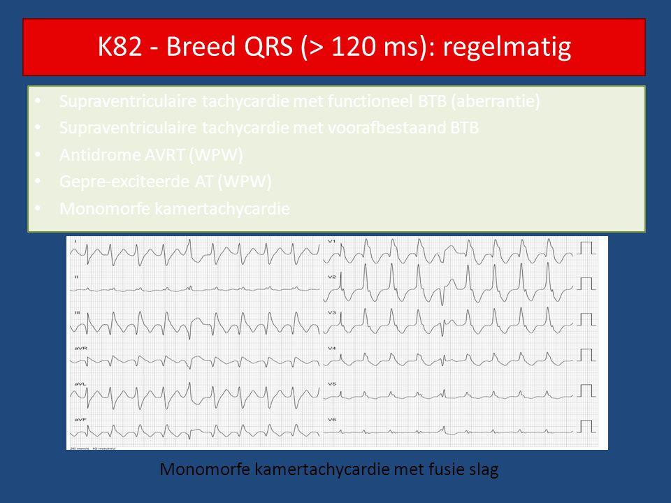 K82 - Breed QRS (> 120 ms): regelmatig