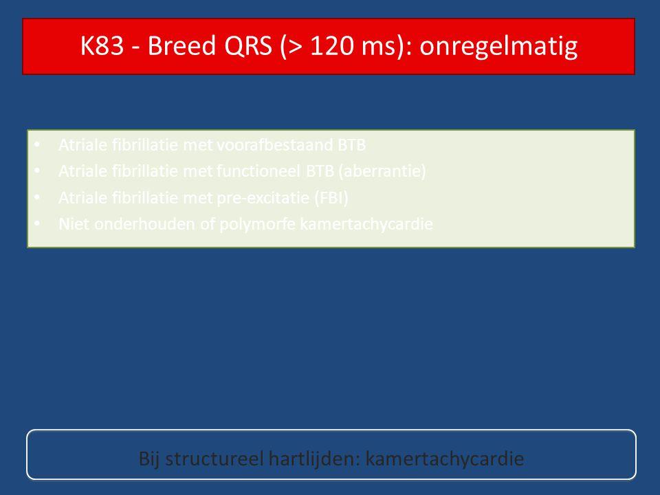 K83 - Breed QRS (> 120 ms): onregelmatig