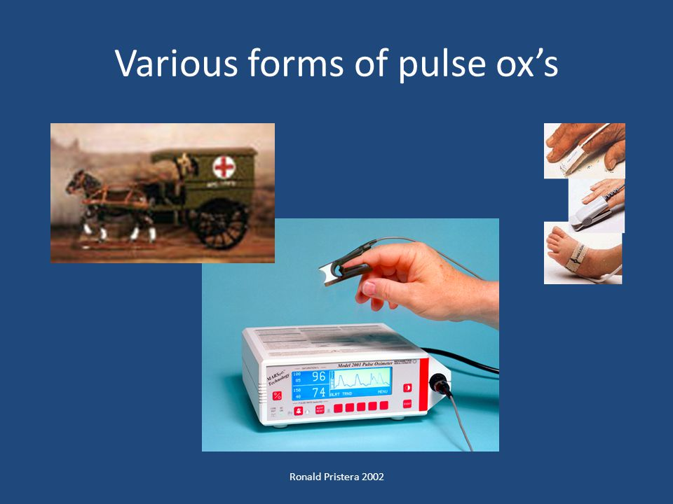 Various forms of pulse ox's
