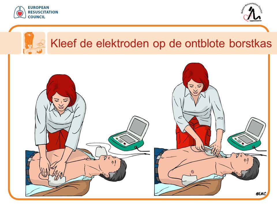 Kleef de elektroden op de ontblote borstkas