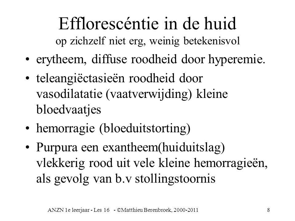Efflorescéntie in de huid op zichzelf niet erg, weinig betekenisvol