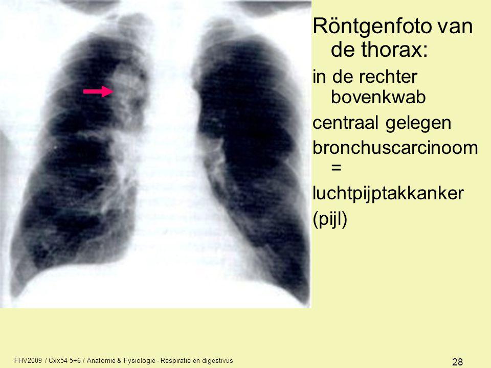 Röntgenfoto van de thorax: