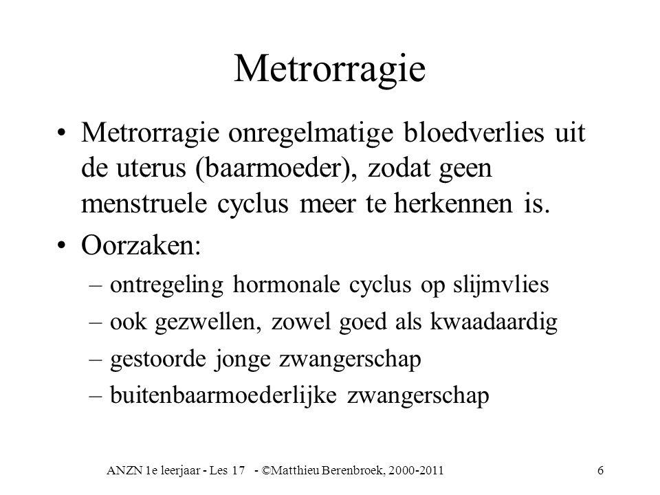 ANZN 1e leerjaar - Les 17 - ©Matthieu Berenbroek, 2000-2011