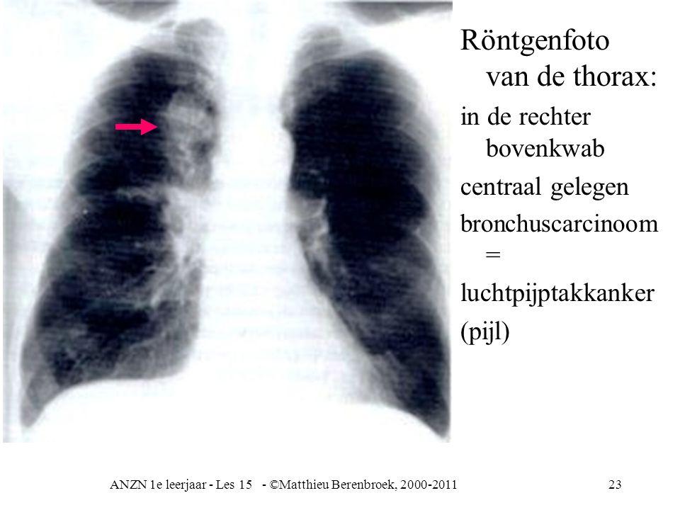 ANZN 1e leerjaar - Les 15 - ©Matthieu Berenbroek, 2000-2011