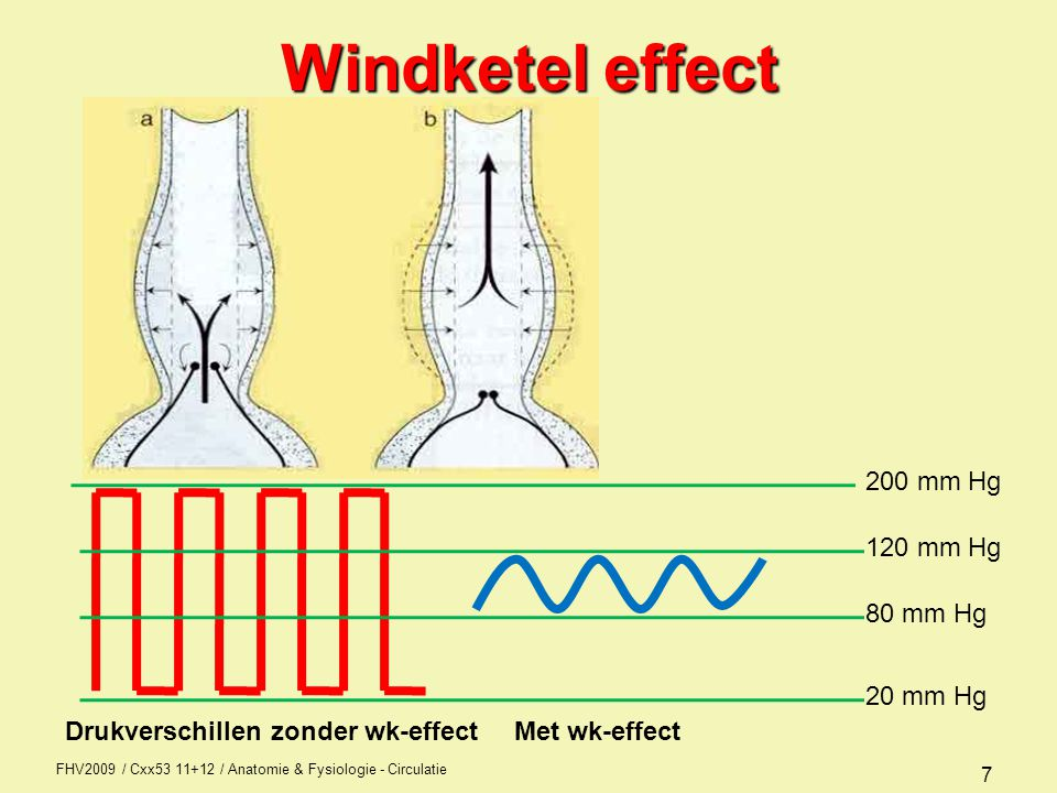 Windketel effect 200 mm Hg 120 mm Hg 80 mm Hg 20 mm Hg