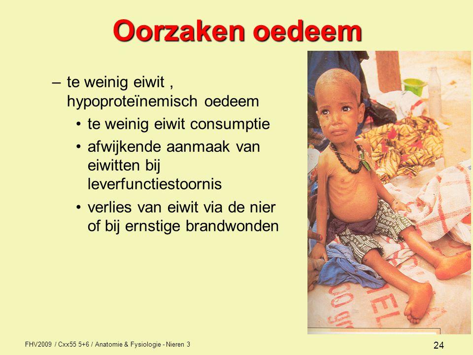 Oorzaken oedeem te weinig eiwit , hypoproteïnemisch oedeem