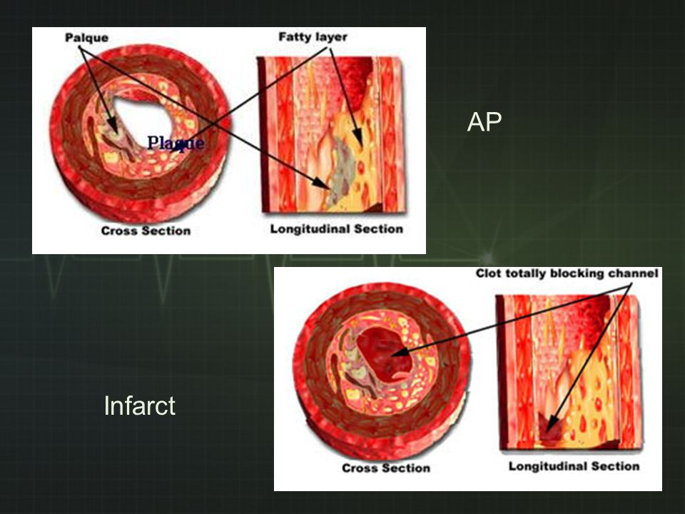 angina pectoris in rust symptomen