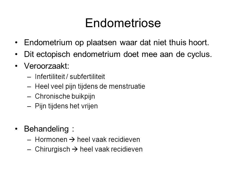 Endometriose Endometrium op plaatsen waar dat niet thuis hoort.