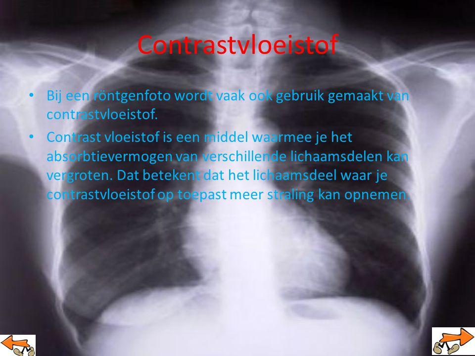 Contrastvloeistof Bij een röntgenfoto wordt vaak ook gebruik gemaakt van contrastvloeistof.
