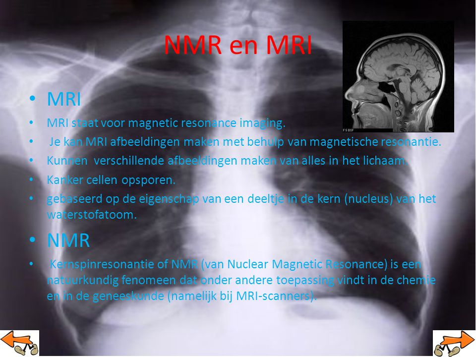 NMR en MRI MRI NMR MRI staat voor magnetic resonance imaging.