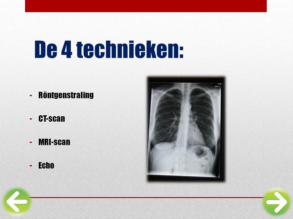 De 4 technieken: Röntgenstraling CT-scan MRI-scan Echo
