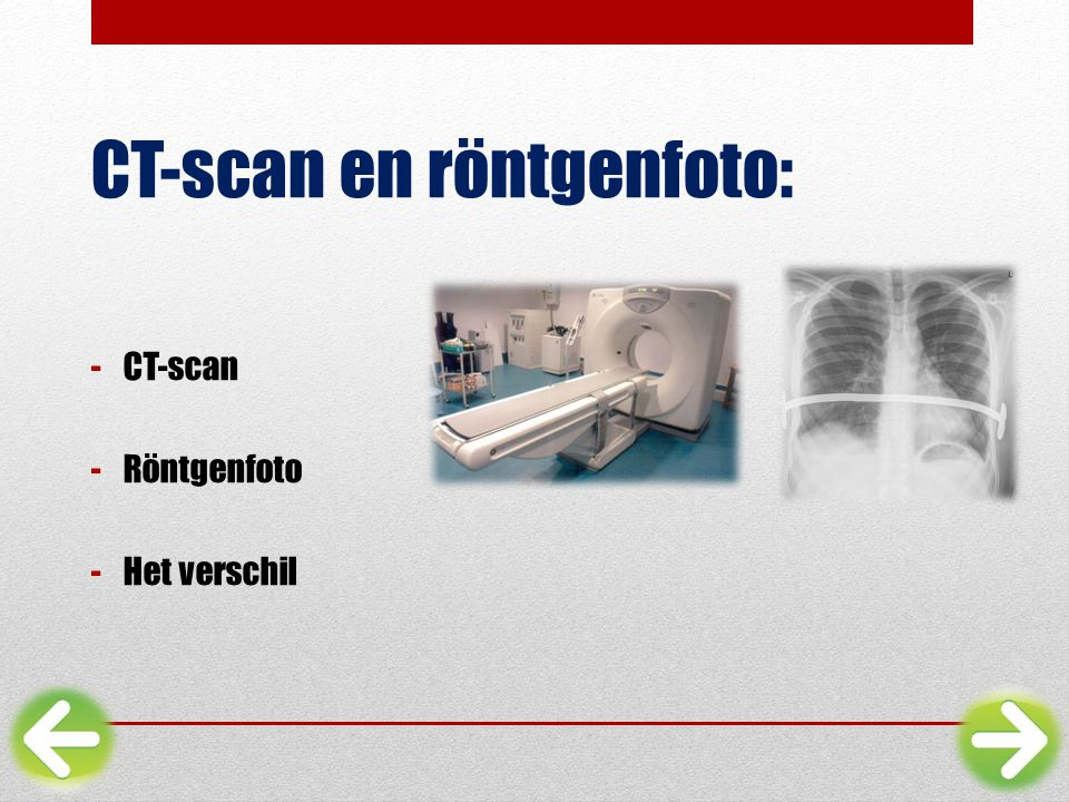 CT-scan en röntgenfoto: