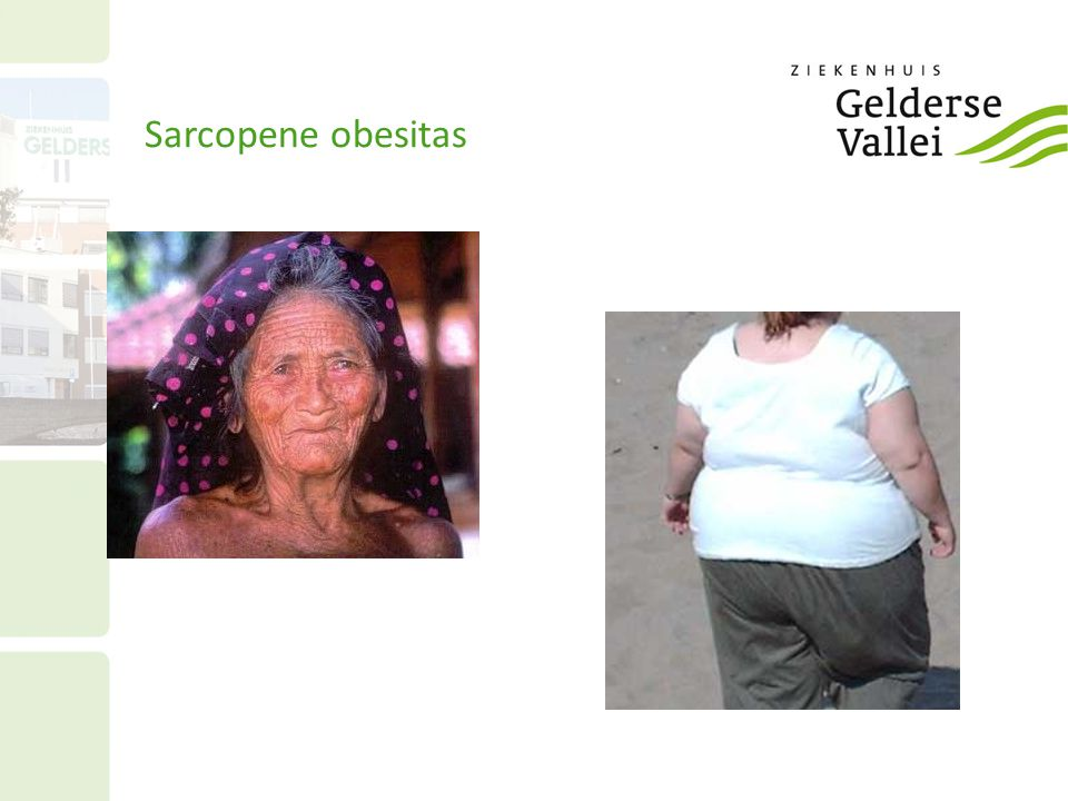 Sarcopene obesitas 12 12