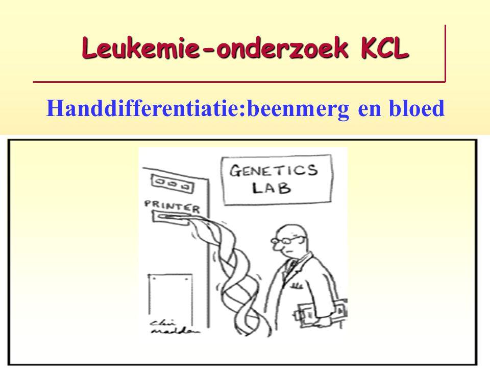 Leukemie-onderzoek KCL