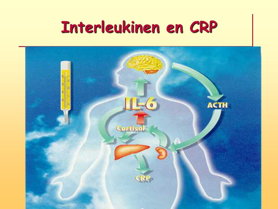 Interleukinen en CRP