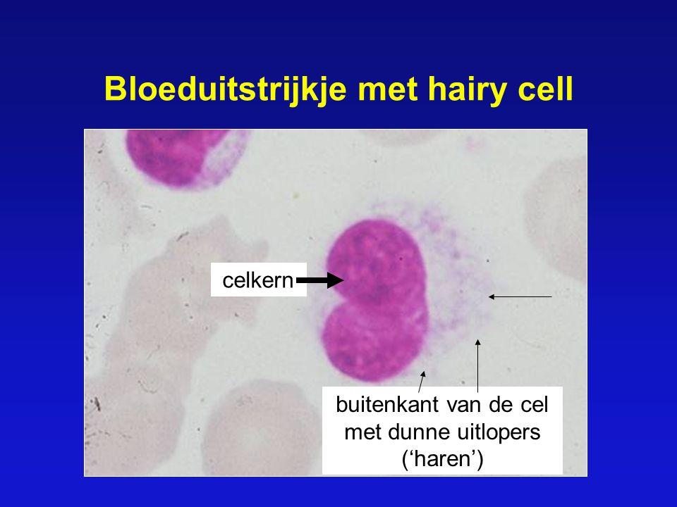 Bloeduitstrijkje met hairy cell