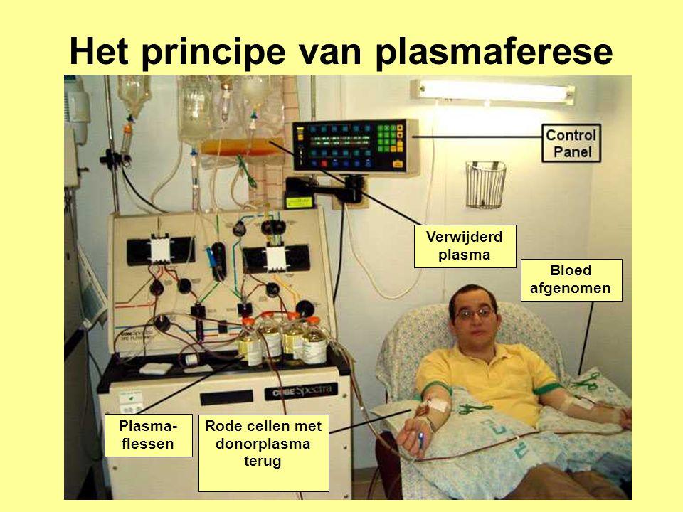 Het principe van plasmaferese Rode cellen met donorplasma terug
