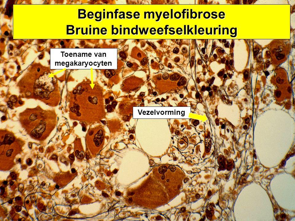 Beginfase myelofibrose Bruine bindweefselkleuring