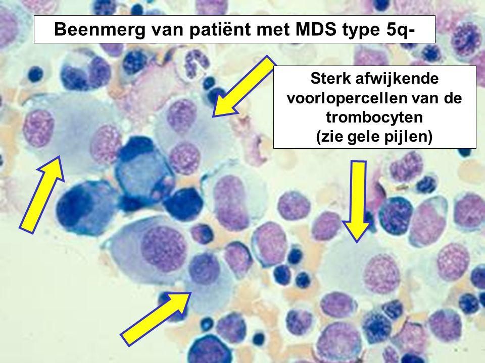 Beenmerg van patiënt met MDS type 5q-