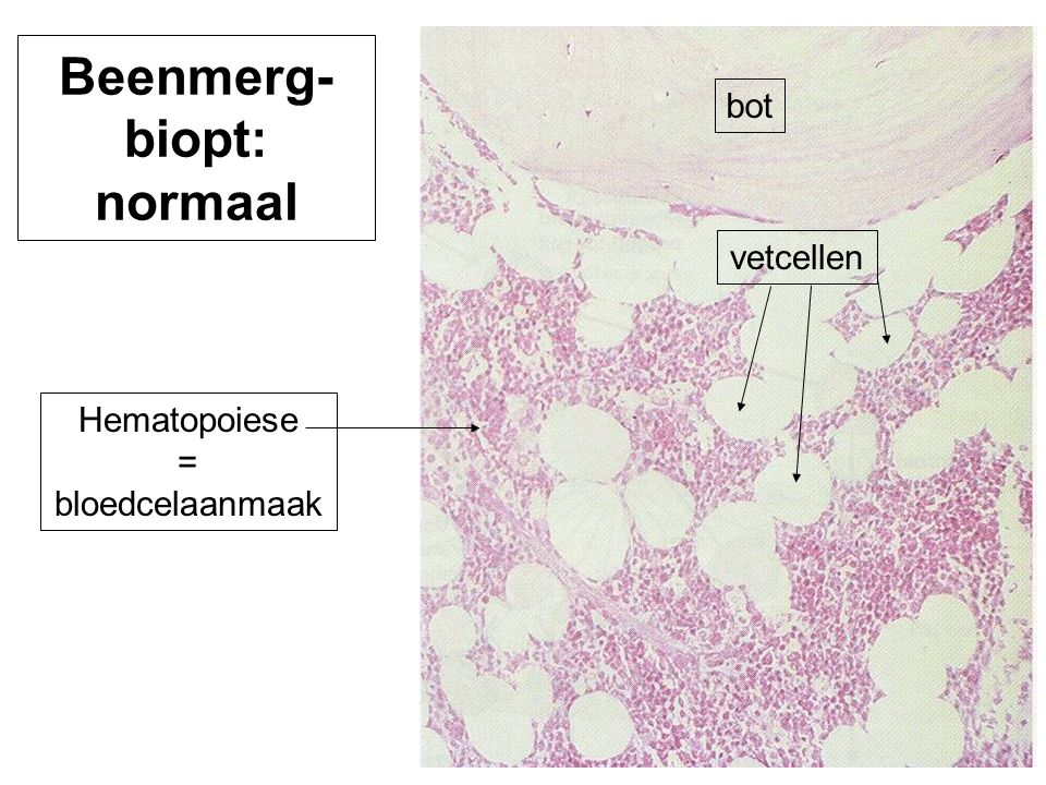 Beenmerg-biopt: normaal