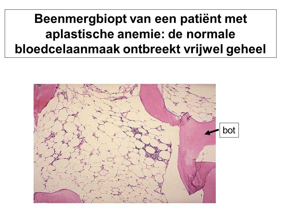 Beenmergbiopt van een patiënt met aplastische anemie: de normale bloedcelaanmaak ontbreekt vrijwel geheel