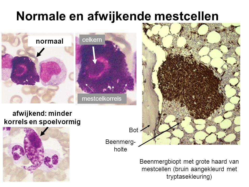 Normale en afwijkende mestcellen