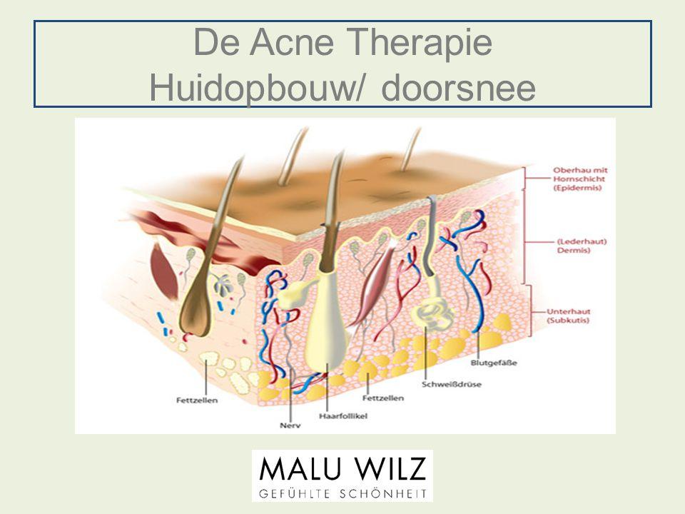 De Acne Therapie Huidopbouw/ doorsnee