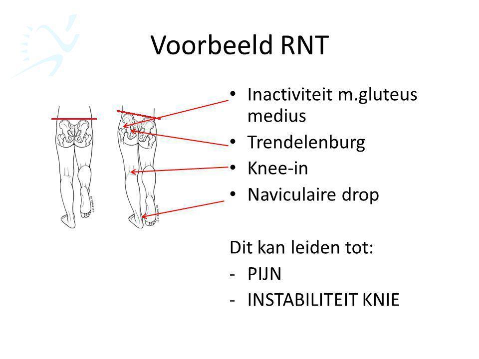 Voorbeeld RNT Inactiviteit m.gluteus medius Trendelenburg Knee-in