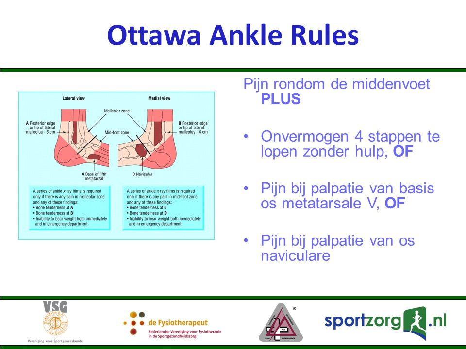 Ottawa Ankle Rules Pijn rondom de middenvoet PLUS