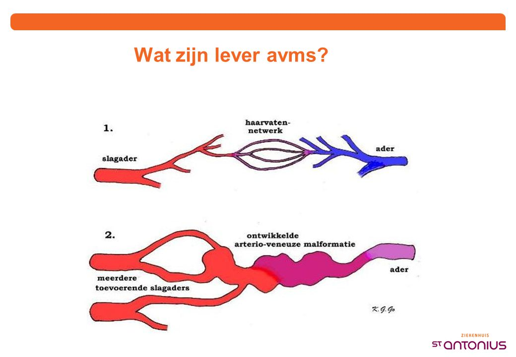 CT lever avms