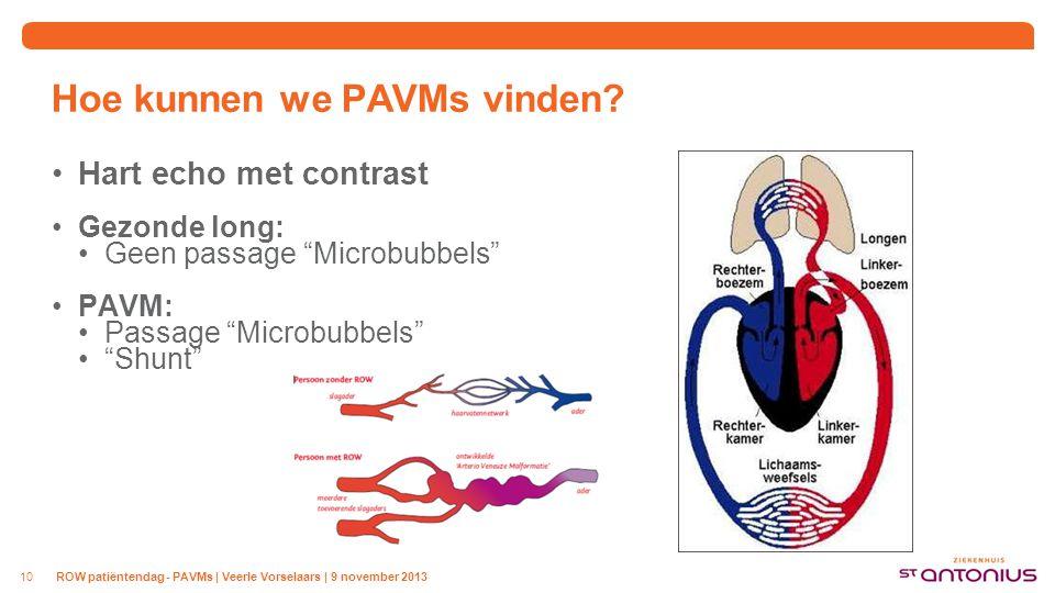 Hoe kunnen we PAVMs vinden