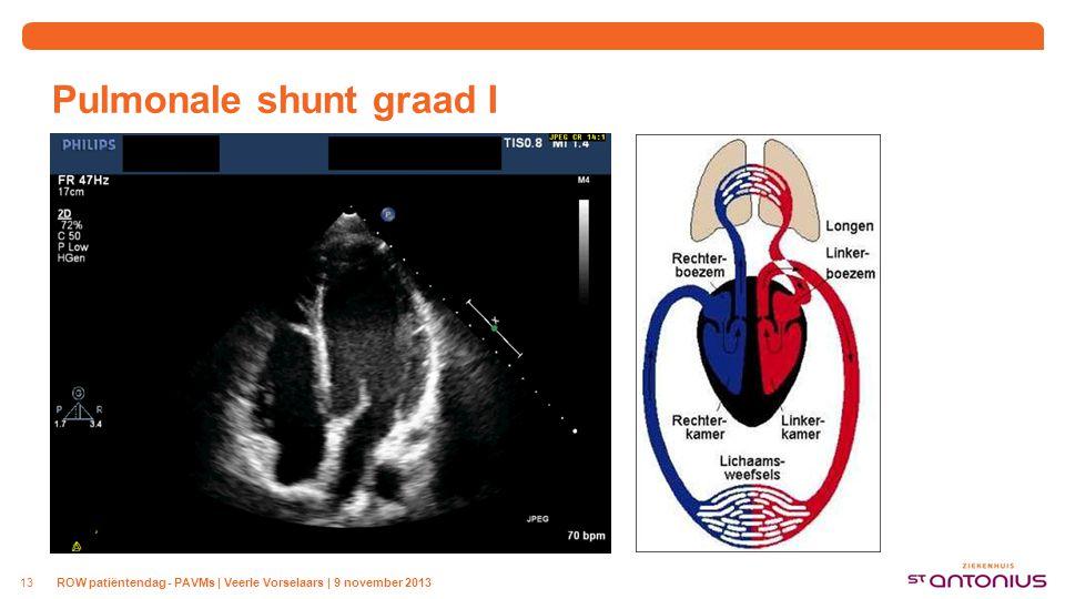 Pulmonale shunt graad II