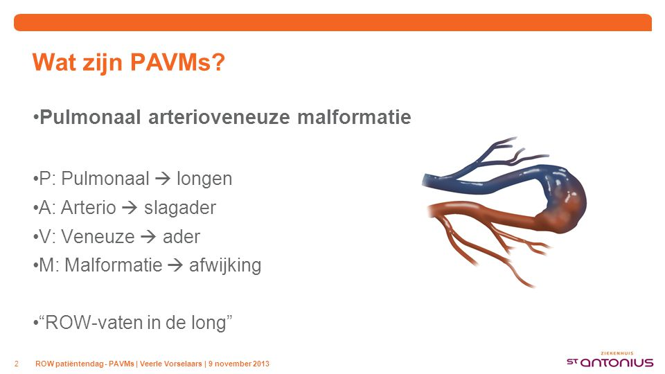 Wat zijn PAVMs Abnormaal gevormd bloedvat tussen slagader en ader in de longen. Haarvatennetwerk vervangen door de arterioveneuze malformatie.