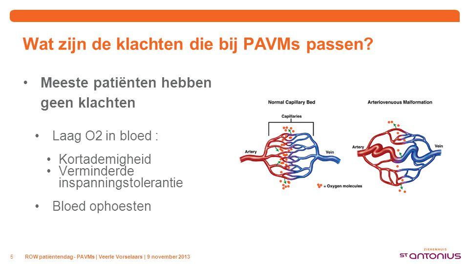 Wat zijn de risico's van PAVMs