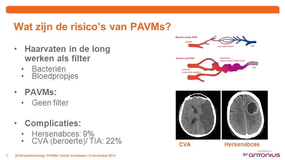 Wat is het belang van screening op PAVMs
