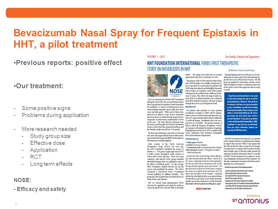 Bevacizumab Nasal Spray for Frequent Epistaxis in HHT, a pilot treatment