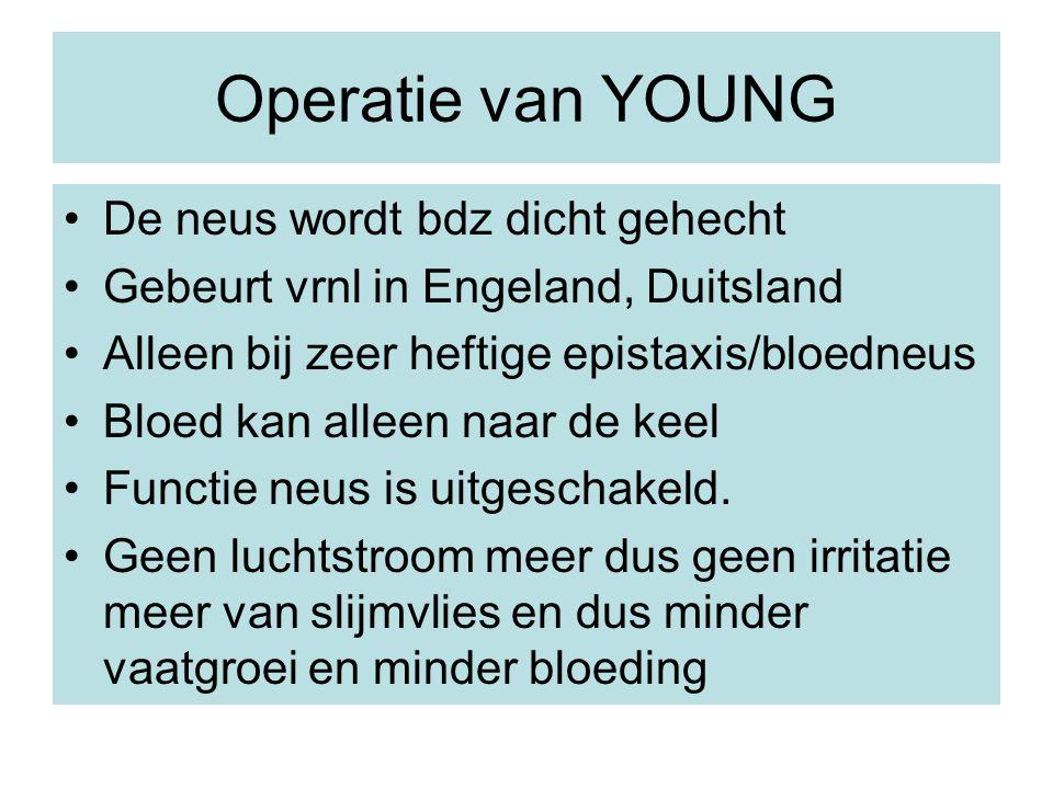 Operatie van YOUNG De neus wordt bdz dicht gehecht