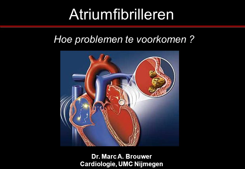 Dr. Marc A. Brouwer Cardiologie, UMC Nijmegen