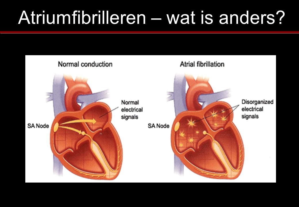 Atriumfibrilleren – wat is anders