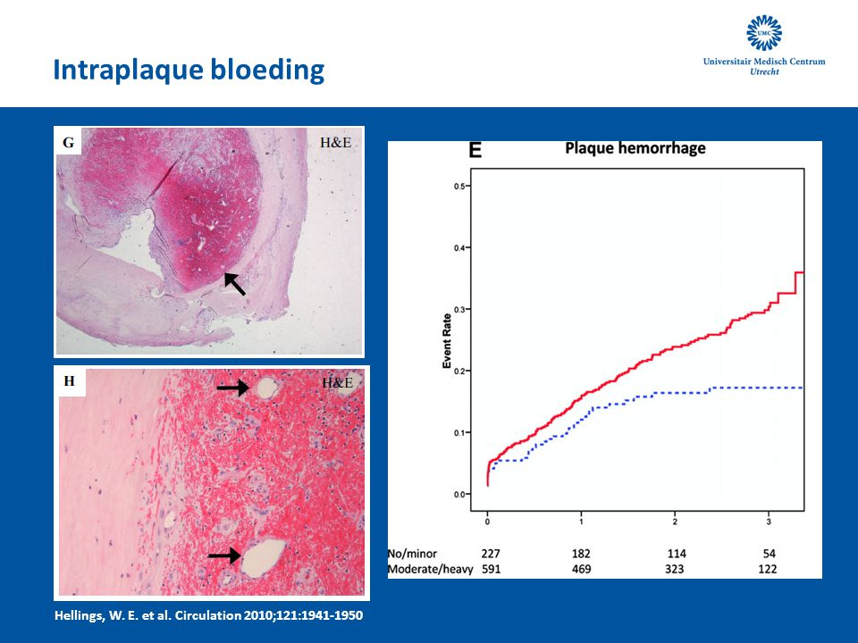 Intraplaque bloeding Hellings, W. E. et al. Circulation 2010;121:1941-1950