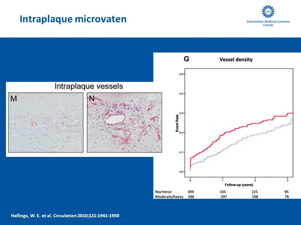 Intraplaque microvaten