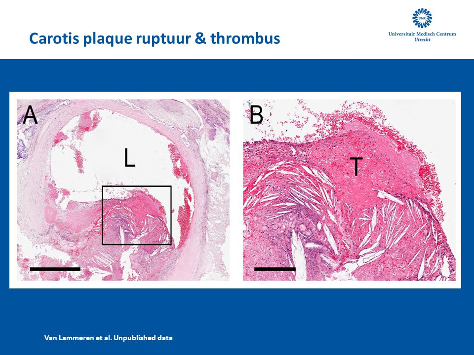 Carotis plaque ruptuur & thrombus