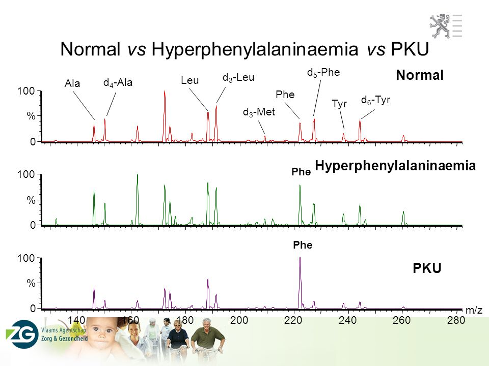 Normal vs Hyperphenylalaninaemia vs PKU