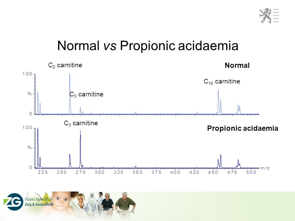 Normal vs Propionic acidaemia