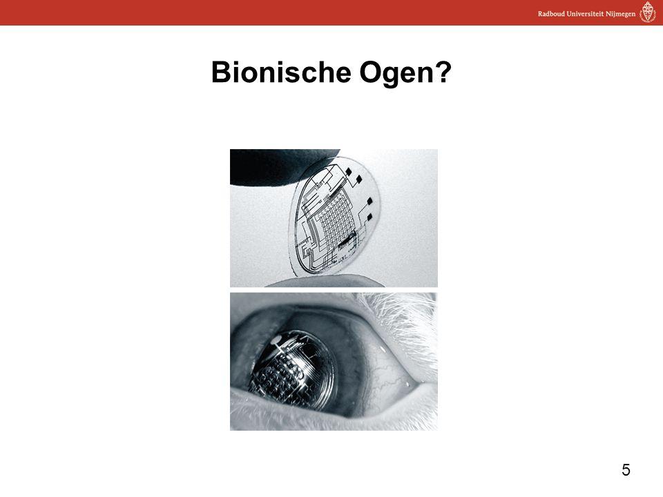 Bionische Ogen