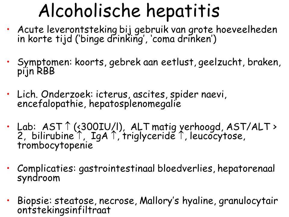 Alcoholische hepatitis