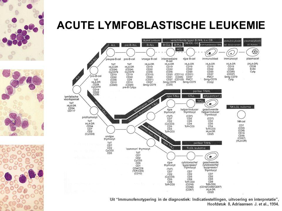 ACUTE LYMFOBLASTISCHE LEUKEMIE