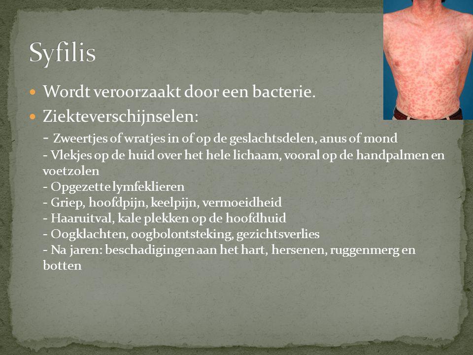 Syfilis Wordt veroorzaakt door een bacterie.