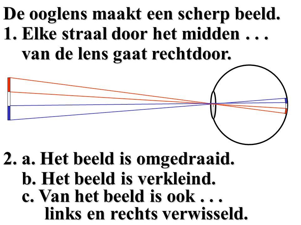 De ooglens maakt een scherp beeld.